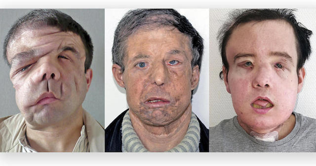 Jerome Hamon, Man with 3 Faces, Gets 2nd Face Transplant